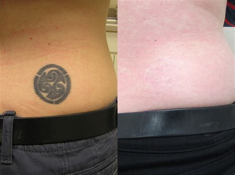 tattoo removal institute removal washington dc center for laser surgery