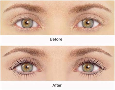 Eyelash Transplant Surgery Becames Popular 2 by The Lash Lift In Brentwood