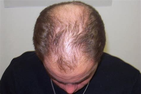 Male Pattern Baldness Haircut | hair transplant hair loss interview with an expert the
