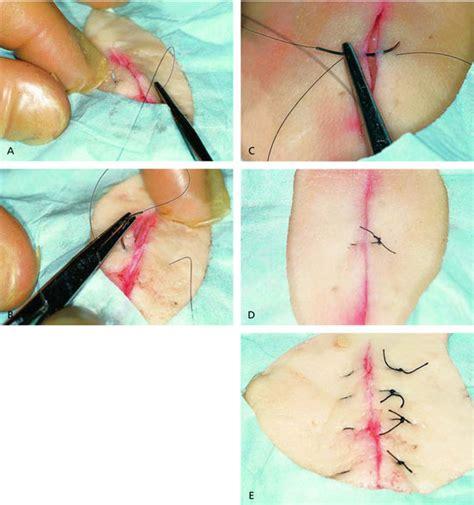 the mattress sutures vertical horizontal and corner