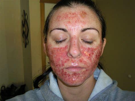 Derma Acne Patch Original active fx fx laser w subcision cystic acne scar