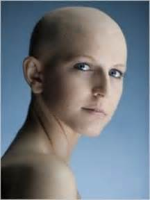cancer chemotherapy and hair loss why it matters 1000 images about alopecian beauty on pinterest head