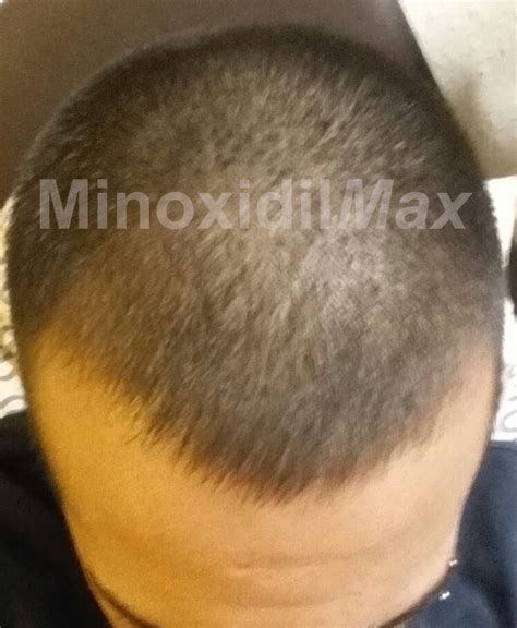 real minoxidel results 15 minoxidil results with before after pictures real