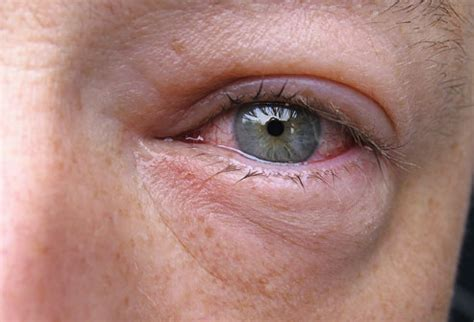 eye infection eye infections viral ocular infections viral viral eye