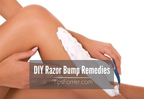 remedies for razor bumps