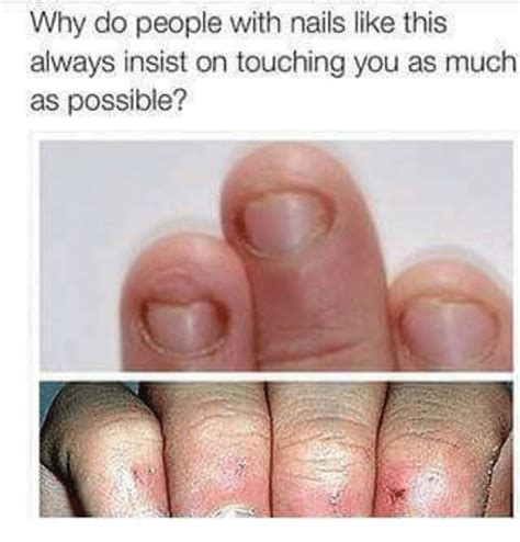 why do like why do with nails like this always insist on