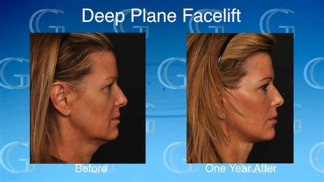 Is A Mini Lift A Facelift Alternative by Mini Facelifts Vs Plane Facelifts New Jersey Dr