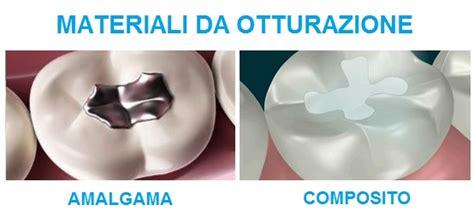 piombatura denti studio dentistico senatore l otturazione dei denti cariati