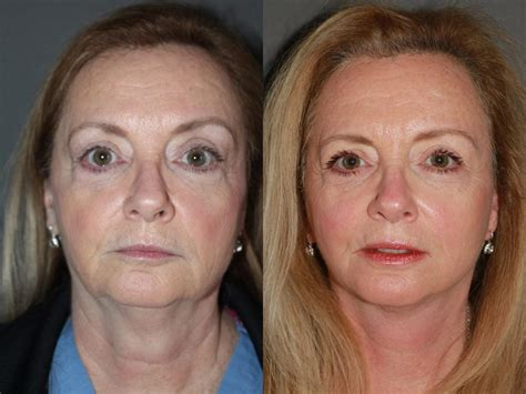 fatimasnaturalfacelift com natural facelift results by best of boston plastic surgeon