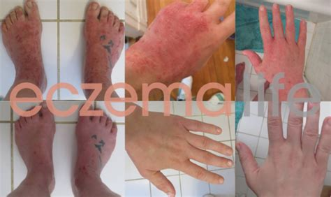 Eczema From Detox by Eczema Diet Before And After Photos Eczema