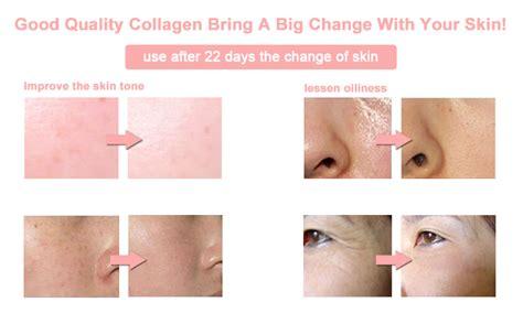Ecer Sachet Collagen Whitening Drink Rc skin whitening collagen supplement best selling taste collagen drink view collagen drink