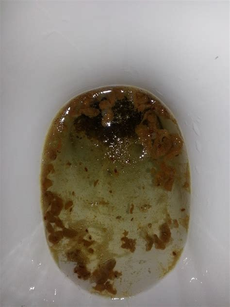 help identifying possible parasite candida stool picture