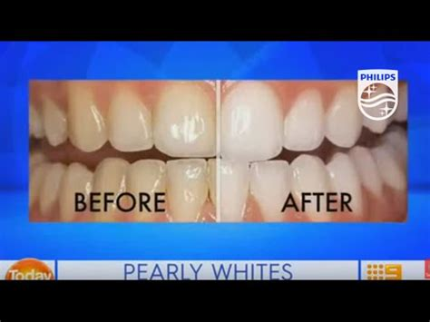 zoom professional  chair teeth whitening  today extra