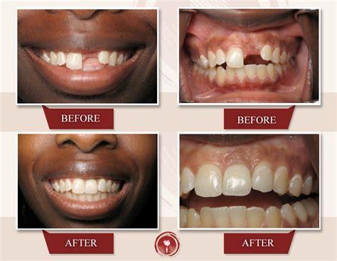 4 missing front teeth implants dental implants smile gallery missing one tooth ramsey