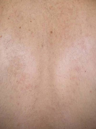 harmony xl laser removal laser hair removal in bracknell berkshire rg12 harmony