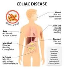 physiology class update celiac disease 171 washington