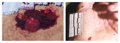 pattern formation in drying drops of blood bloodstain pattern analysis how it s done