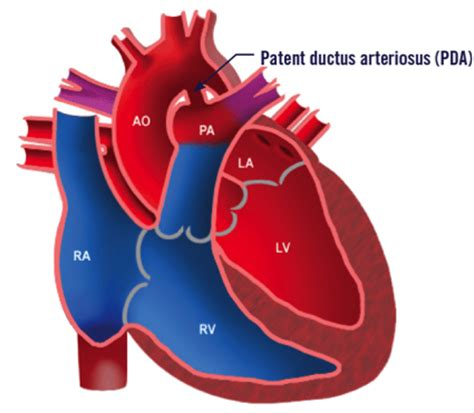 pda diagram patent ductus arteriosus in the pda congenital