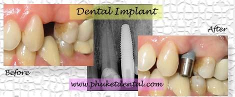city park dental clinic in city park dental clinic dental implant at phuket dental