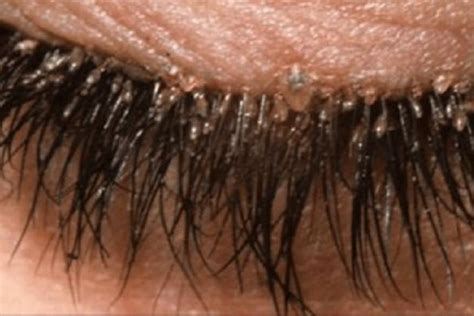 eyelash extensions for 55year old what are eyelash mites woman suffers redness in eyes due