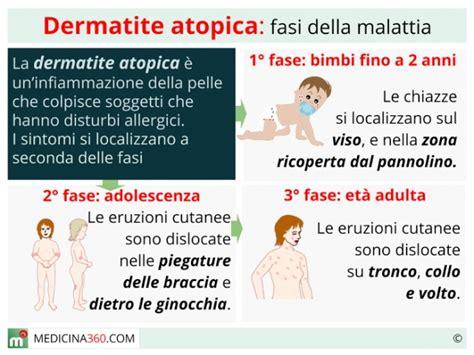 dermatite atopica alimentazione dermatite atopica cause cura alimentazione e rimedi