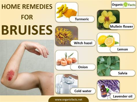 home remedies for bruises organic facts