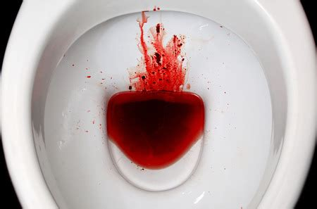 Seeing Blood In Stool by Blood In Stool Here S Why The Renegade Pharmacist