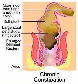 what is constipation diseases and disorders best