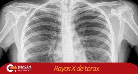 imagenes medicas rayos x rayos x de torax radiografias