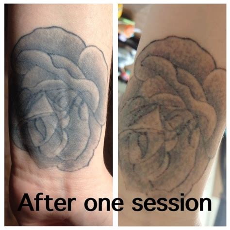 tattoo removal cheshire the missing ink laser removal