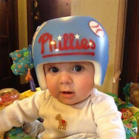 helmet design for babies how i handled the news your baby needs a helmet parenting