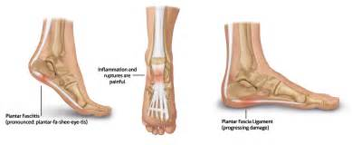 Planters Faciaitis by Plantar Fasciitis Causes Symptoms Treatment Plantar