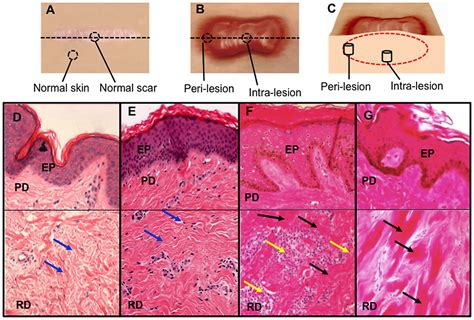 4 c sections scar tissue dermal biopsy locations from healthy controls and keloid