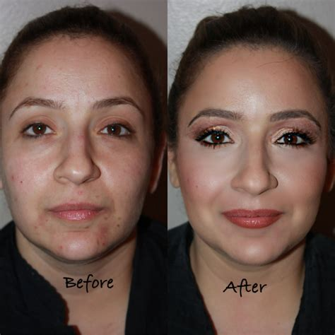 Serum Makeover before and after