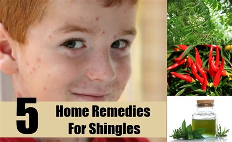 5 best home remedies for shingles treatments