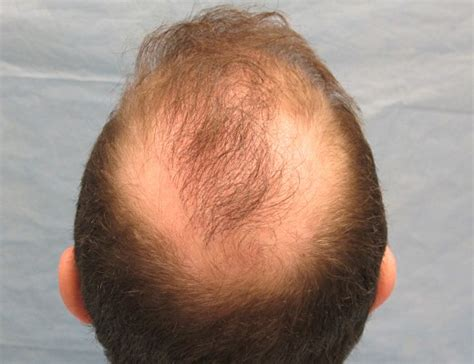 Hair Transplant Problems | hair transplant problems hairstylegalleries com