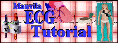 ecg tutorial online video image gallery ecg tutorial