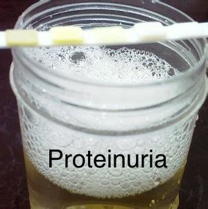 1 protein in urine proteinuria driverlayer search engine