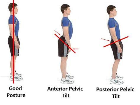 swing shift syndrome posterior pelvic tilt vs anterior pelvic tilt posterior