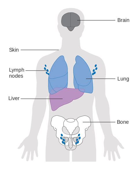 file diagram showing the parts of the body the lymphatic file diagram showing where in the body cancer tends to