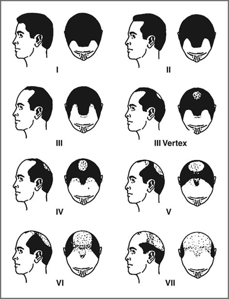 male pattern hair loss emedicine difference between mature hairline and early balding
