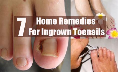 7 ingrown toenails home remedies treatments