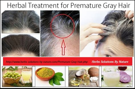natural remedies for premature gray hair beauty natural remedies for premature gray hair beauty 14