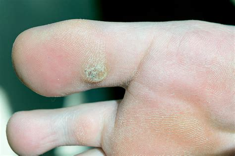 Planters Wart On Toe Pictures by Plantar Wart On Big Toe Visible Black Dots Warts Stock