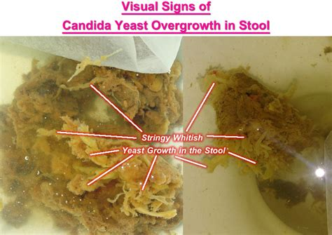 White Stringy Substance In Stool by Candida Yeast In Stool Candida Yeast In Yeast In