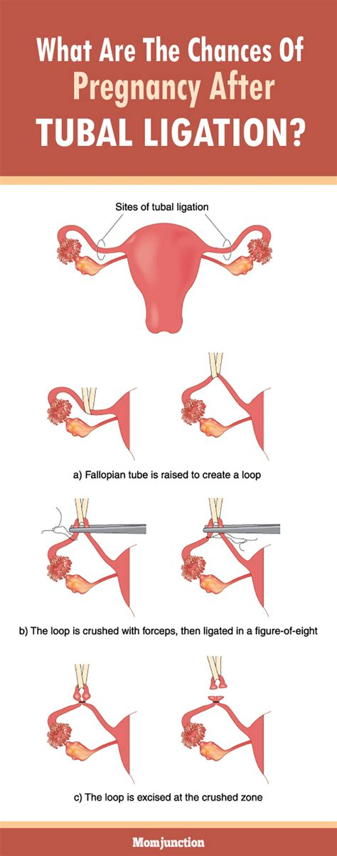 tying tubes during c section what are the chances of pregnancy after tubal ligation