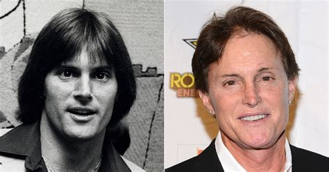 does bruce jenner have hair extensions jenner before and after photos shocking to fans but