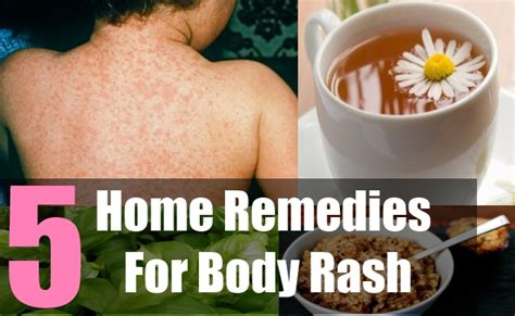 5 treat skin rashes with remedies how to get rid