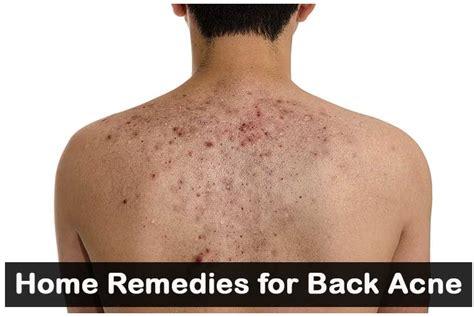 home remedies for back acne treatment home remedies 2 u