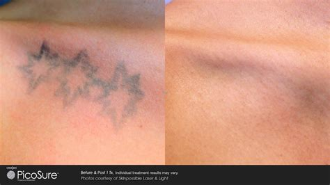 tattoo removal near me cheap laser tattoo removal gentle touch medispa